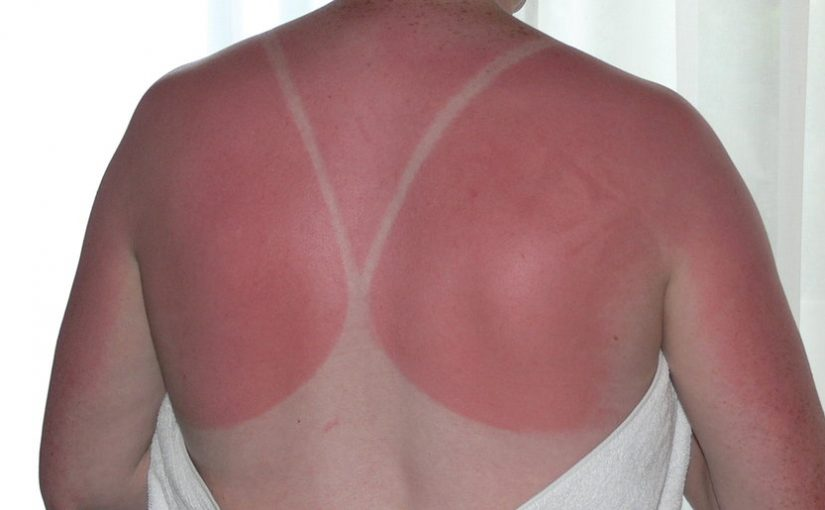 Sunburn Aftercare Tips