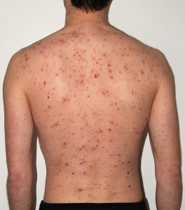Chickenpox Adult back